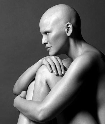 """""""El cáncer tiene un lado bueno"""" la modelo Mieko Rye cuenta su experiencia en Facebook"""