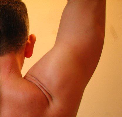 Evitar las lesiones del manguito rotador del hombro