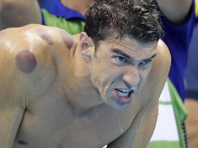 La terapia china que uso Phelps, ¿realmente ayuda a rendir más?