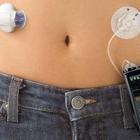 La FDA da el visto bueno para la primera bomba automática de insulina para diabéticos