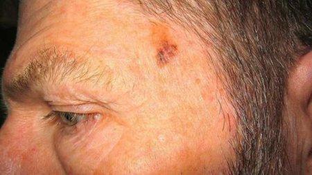 El cáncer de piel ha aumentado hasta en un 237 por ciento