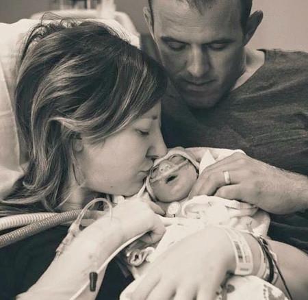 Deciden dar a luz a su hija con anencefalia, sabiendo que viviría pocas horas, para donar sus órganos