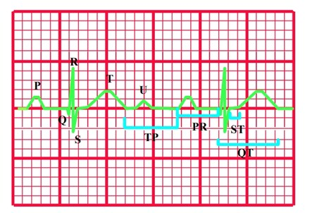 gráfico 1