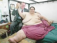 ¿Existe alguna relación entre obesidad y cáncer de colon?
