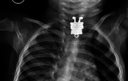 Por qué los niños no deben jugar con objetos pequeños: Bob Esponja hallado en el esófago de un niño