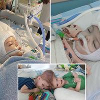 Separan con éxito a dos bebés que nacieron unidos por la cabeza