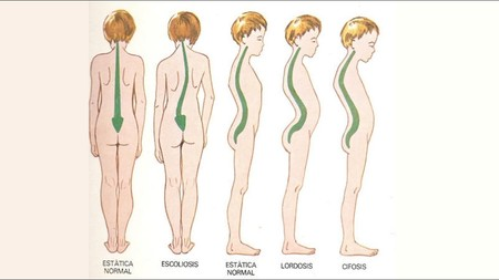 escoliosis-cifosis