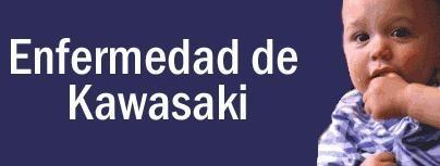 Síndrome de Kawasaki o Síndrome Mucocutáneo Ganglionar