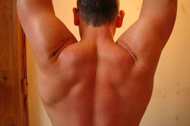 espalda2