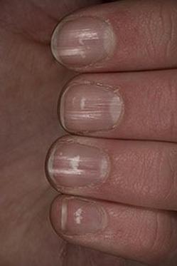 Las uñas y sus famosas manchitas blancas