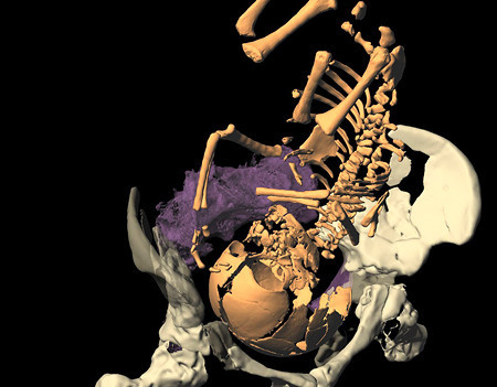 El parto de la mujer Neandertal era casi igual que el actual
