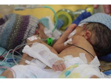 Las siamesas más jóvenes en ser separadas a los ocho días de vida