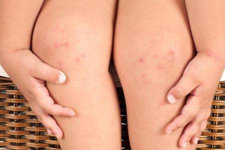 dermatitis-atopica