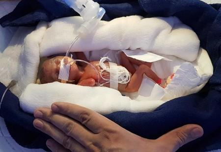 Llegó al mundo con 400 gramos y logró sobrevivir pese a haber nacido niña en la India