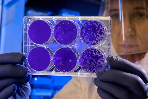 Coronavirus de Wuhan: en qué consiste la cepa 2019-nCoV (y cuántas posibilidades hay de que llegue a España)