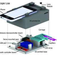Tu teléfono se convierte en detector de parásitos con CellScope Loa