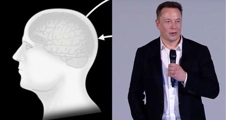 Neuralink Presentation Elon Musk
