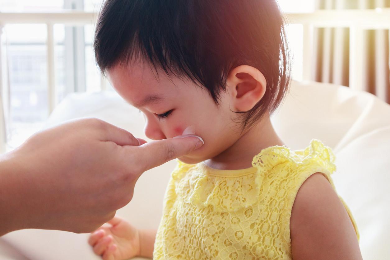 ¿Cómo contrae una infección por hongos un niño de 3 años?