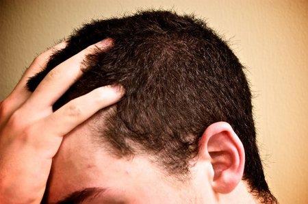 caida pelo hombre