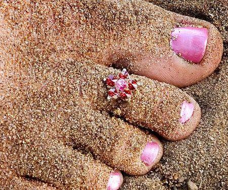 Las uñas encarnadas, un molesto problema