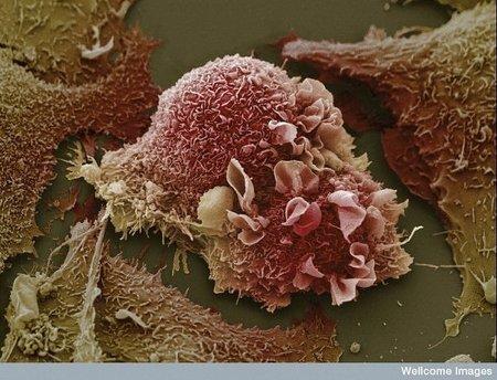 Creada una nanopartícula que utiliza la luz y el calor para destruir tumores