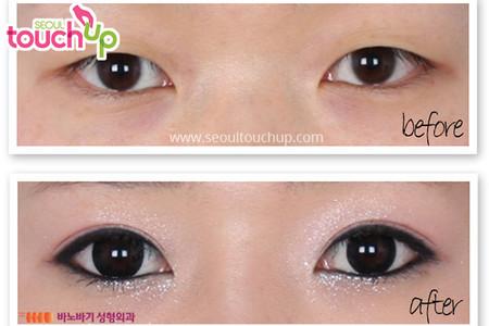 Double Eyelid6