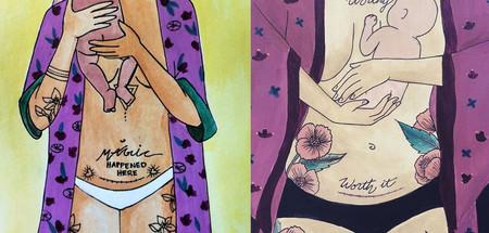 Las bellas pinturas que nos muestran lo especial que es el parto por cesárea