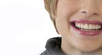 SimpliClear, la nueva ortodoncia que te permitirá lucir una sonrisa de infarto