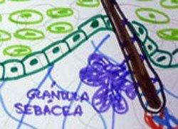Glandula-sebacea