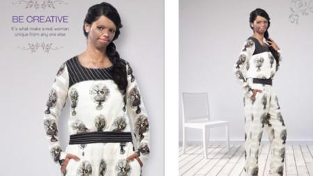 Una víctima de un ataque con ácido protagoniza la última campaña de Viva n Diva: ¿vale todo en el mundo de la moda?