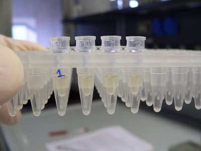Expertos en dermatología avalan el uso de parabenos en cosmética