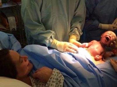 """El increíble vídeo de una cesárea natural en la que el bebé """"nace solo"""""""