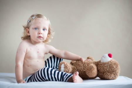 La grave reacción que el ibuprofeno podría haber causado a un niño con varicela