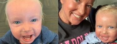 Una madre y su bebé son expulsados de un avión por padecer una enfermedad rara en la piel, que no es contagiosa