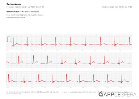 Analisis Apple Watch Series 4 Electrocardiograma Applesfera 04