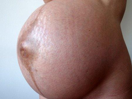 Estrías abdomen