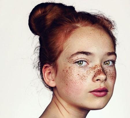 Orgullosos de sus pecas: así son los retratos más body positive de este fotógrafo londinense