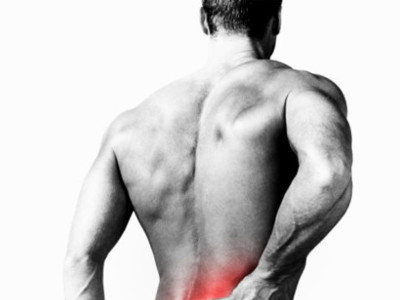 Hernia discal, un trastorno habitual en deportistas