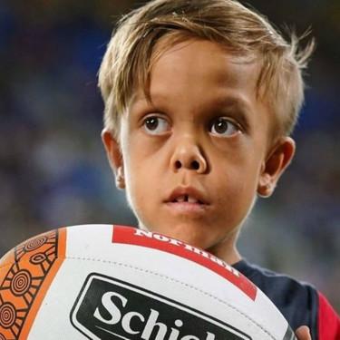 La lección de Quaden: el niño con acondroplasia donará el casi medio millón de dólares recaudado para asociaciones contra el bullying