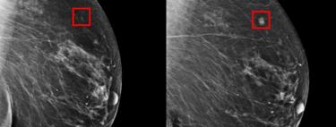 La Inteligencia Artificial ya permite detectar un cáncer de mama con hasta cinco años de anticipación