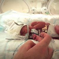 Nacer microprematuro: vino al mundo con 27 semanas y 745 gramos y ha logrado sobrevivir