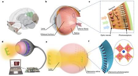 Ojo artificial: esquema comparativo