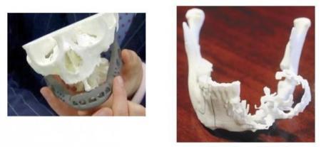Dos pacientes de cáncer reciben sendas mandíbulas impresas en 3D
