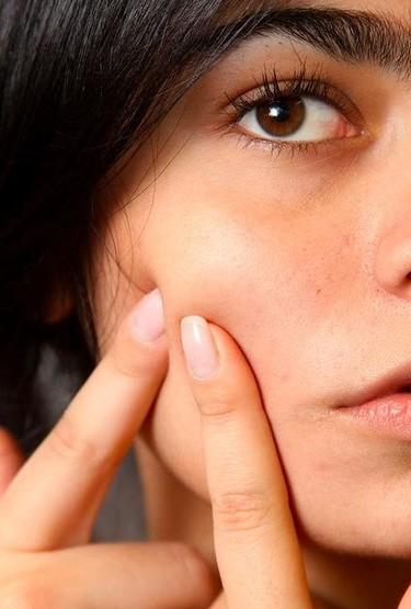 ¿Por qué me sale acné durante el embarazo?