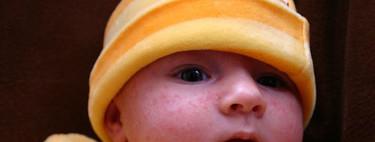Diez alteraciones en la piel del recién nacido