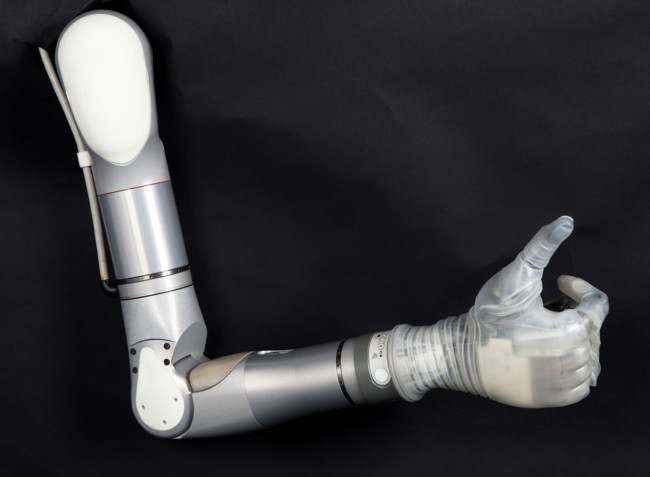 Mobius Bionics Luke Arm Large
