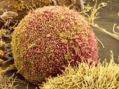 El VIH desafía nuestros intentos para acabar con él mediante edición genética