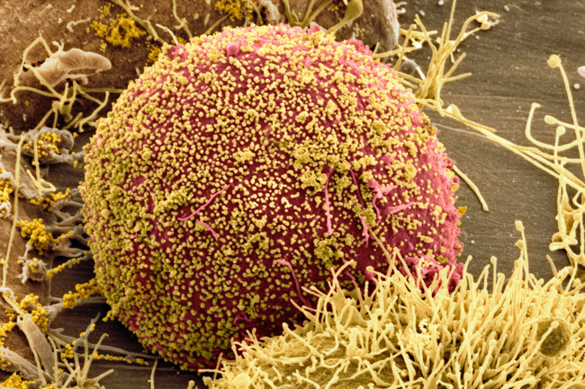 C0036043 Cell Infected With Hiv Sem Spl 1200x800