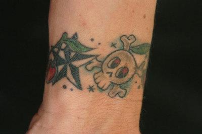 Métodos para eliminar un tatuaje