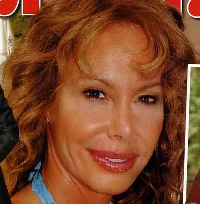 ¿Qué se ha hecho Lara Dibildos en la cara?